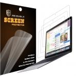 Mr Shield MacBook 12 inç Retina Premium Şeffaf Ekran Koruyucu (3 Adet)