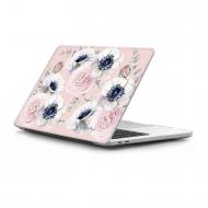 Casetify MacBook Pro Kılıf (13 inç/Retina)